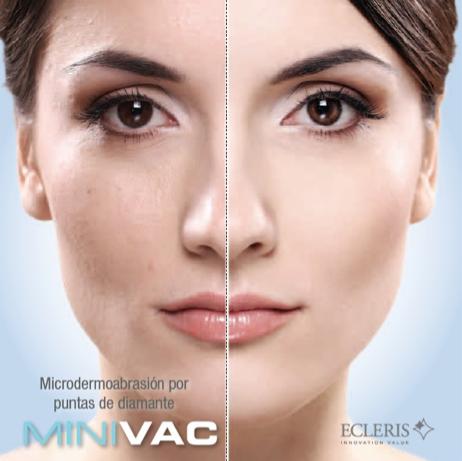 Mikrodermoabrazija – u službi zdrave i lepe kože