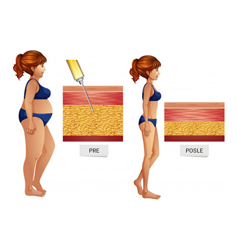 liposukcija koncept
